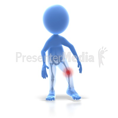 Stick Figure Knee Injury Presentation clipart