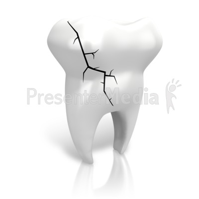 Cracked Tooth Presentation clipart